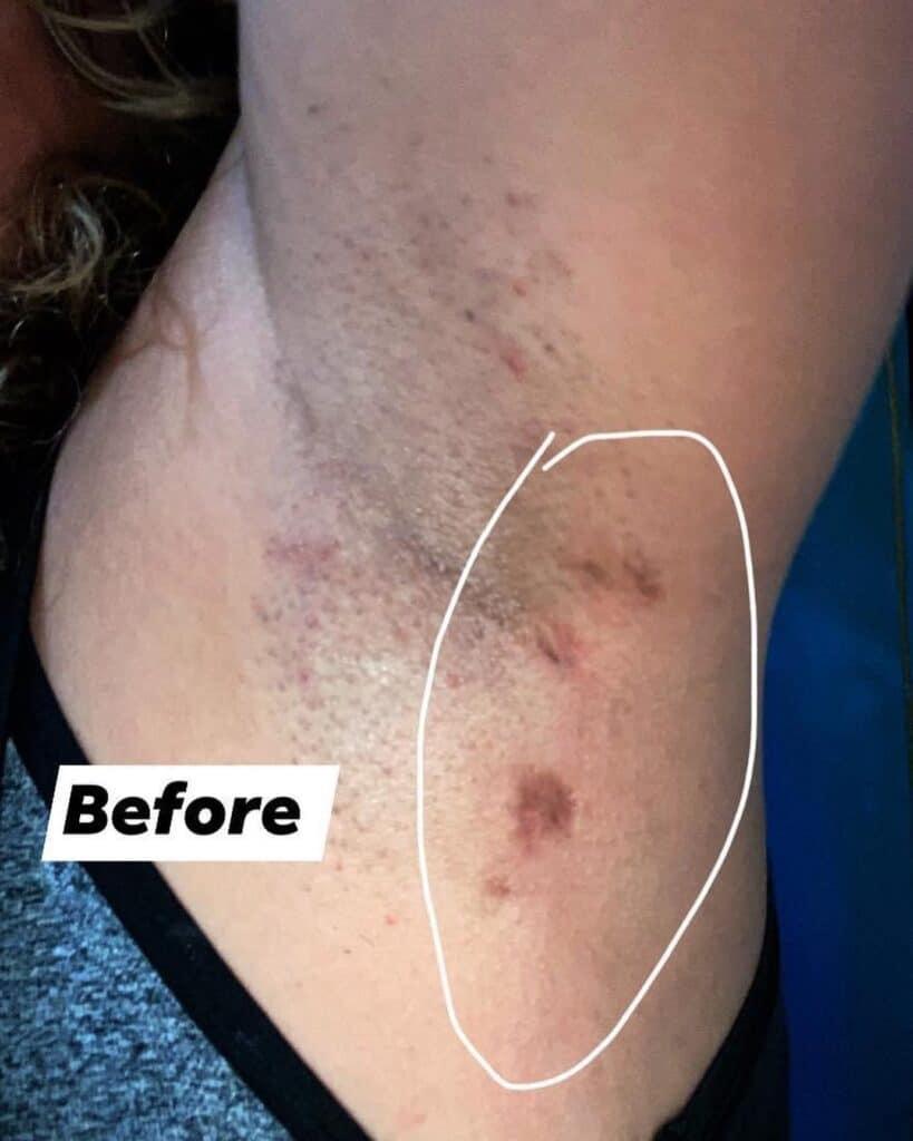 hidradentitis suppurativa scars